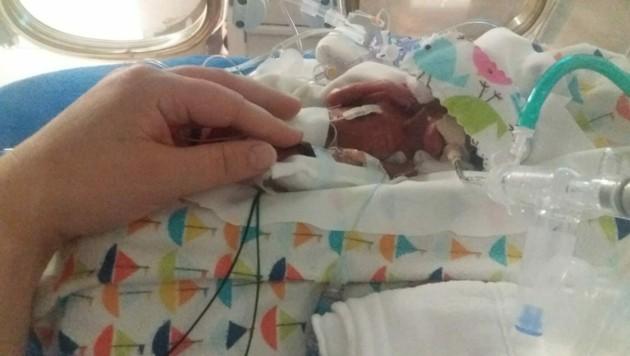 Richard Scott William Hutchinson passte bei seiner Geburt auf eine Handfläche. (Bild: facebook.com/eriverson85)