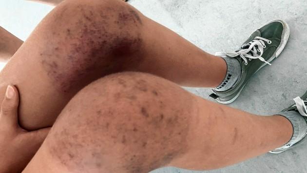 Übersät mit blauen Flecken: die verletzten Knie der 13-jährigen Schülerin aus Wien nach dem Pool-Unfall in Lignano (Bild: zVg)