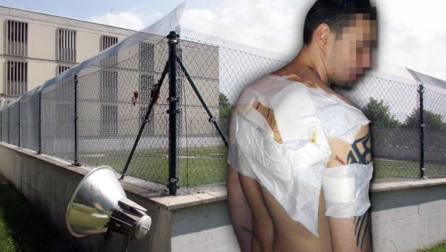 Schnittwunden am ganzen Rücken trug Häftling Dominik P. bei der Attacke in der Haftanstalt davon.