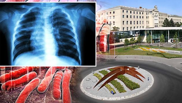 TBC ist eine bakterielle Infektionskrankheit, die am häufigsten die Lungen befällt. (Bild: Klinikum Wels-Grieskirchen, thinkstockphotos.de)