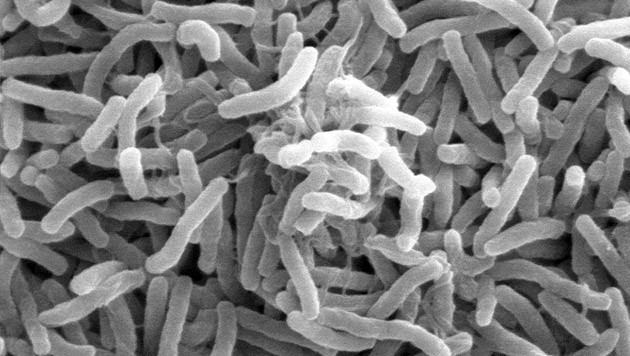 Das Cholera-Bakterium (Bild: Ronald Taylor, Tom Kirn, Louisa Howard)