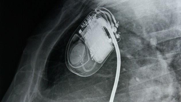 Die Röntgenaufnahmen zeigen einen Herzschrittmacher (Bild: thinkstockphotos.de)
