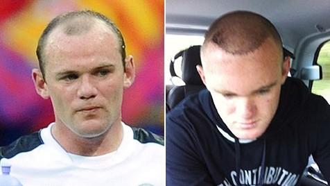 Rooney Haartransplantation
